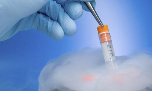 Egg freezing: Making babies in the modern world