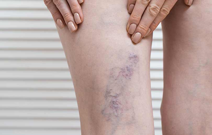 Varicose veins can affect women in the second and third trimesters of pregnancy.