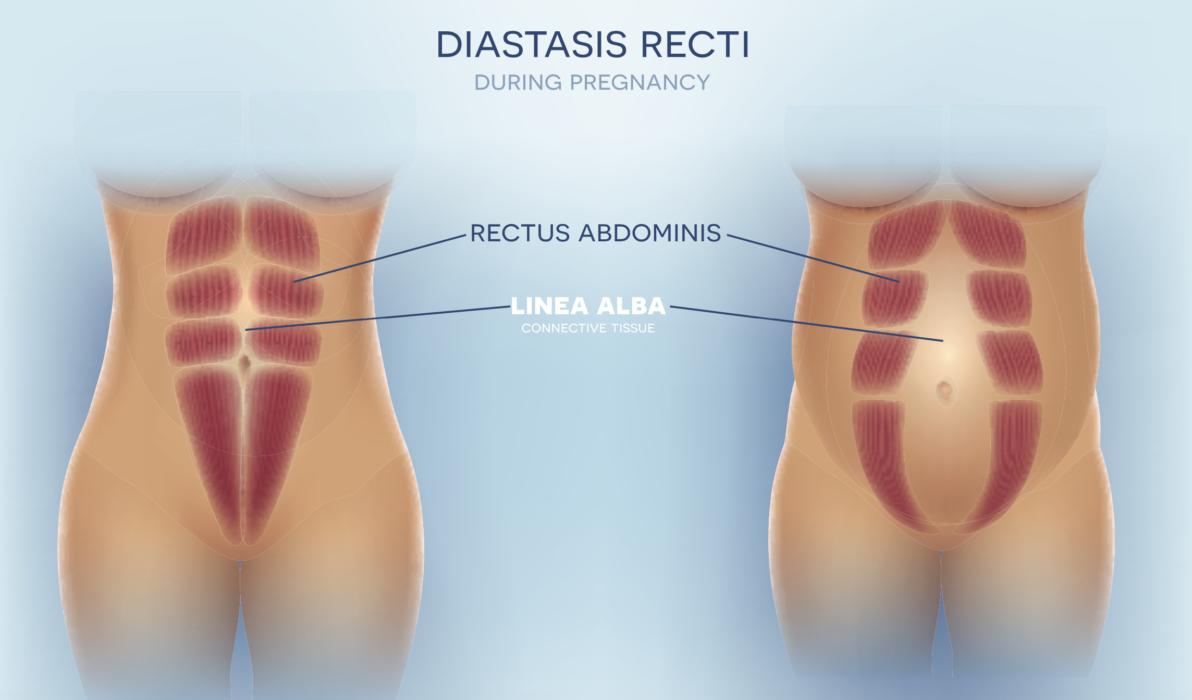 The truth about your postpartum body_Diastasis Recti
